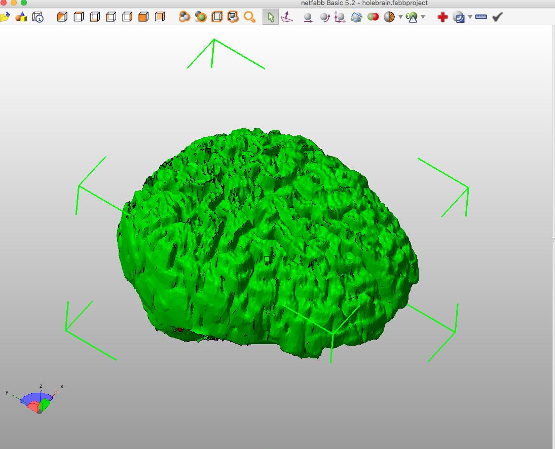 Andrew Sink 3D Printed MRI 4