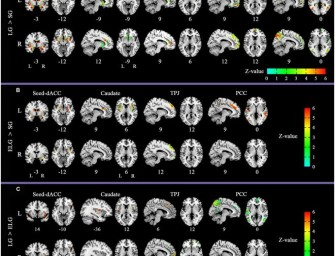 Here's What Your Brain Looks Like When You're In Love