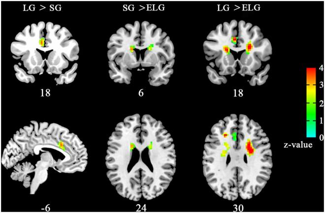 Brain areas with altered regional homogeneity (ReHo) the in-love group (LG) and ended-love group (ELG). Front. Hum. Neurosci.