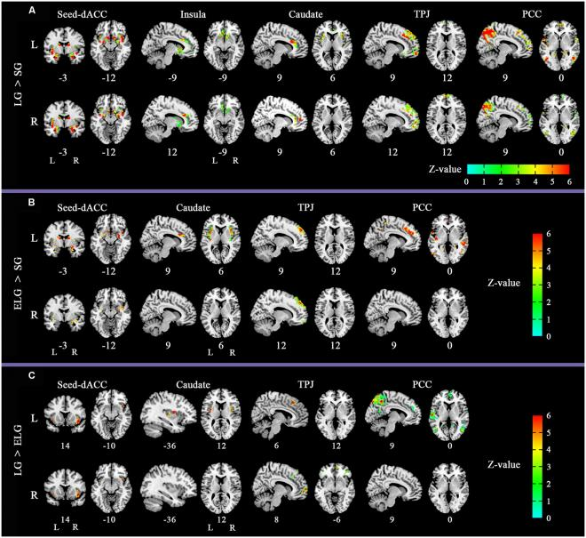brain-scans-across-all-three-groups-1